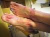 Verbrande voeten